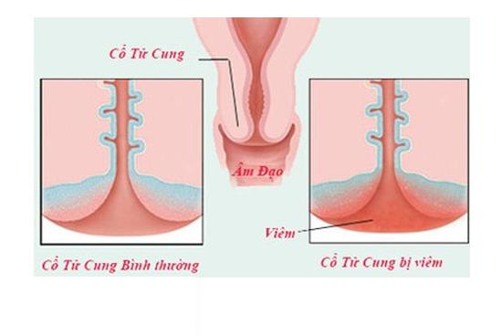 Bệnh cổ tử cung có phải là triệu chứng của bệnh vô sinh?