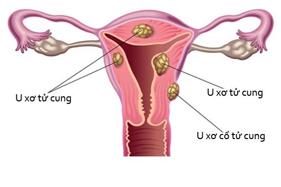 Dấu hiệu của bệnh u xơ cổ tử cung