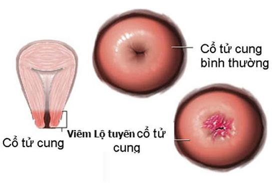 Bệnh viêm lộ tuyến cổ tử cung