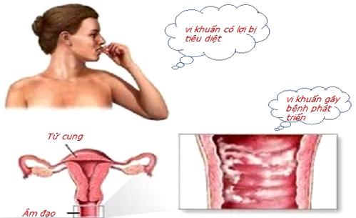 Nguyên nhân ngứa âm đạo