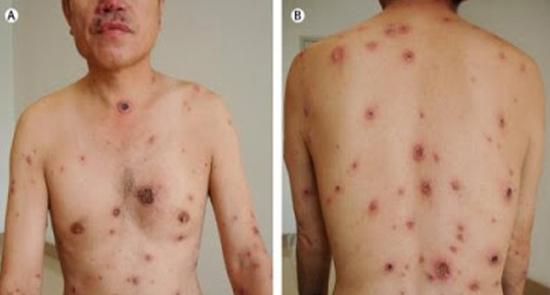 Triệu chứng của bệnh giang mai biểu hiện thế nào