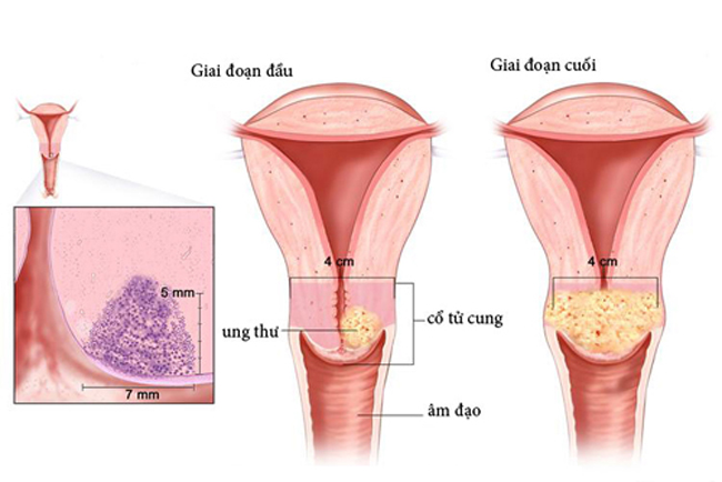 Ung thư cổ tử cung - nguyên nhân gây ung thư cổ tử cung