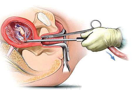 Nạo phá thai an toàn
