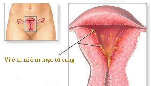 Cách chữa - Nguyên nhân viêm tử cung- viêm niêm mạc tử cung