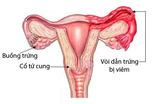 Viêm vòi trứng - Nguyên nhân viêm vòi trứng